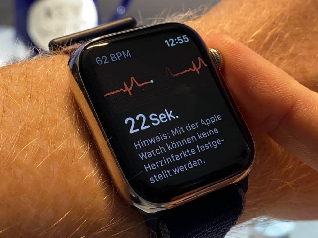 Smartwatch mit EKG (Elektrokardiogramm): Wie zuverlässig ist die Aufzeichnung des 1-Kanal-EKGs? Foto: Sascha Tegtmeyer